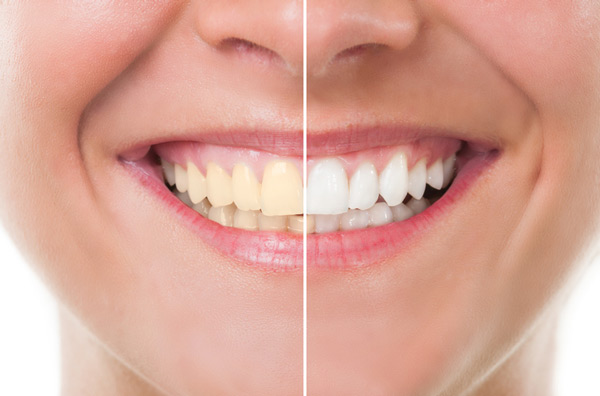 Before and after photo of teeth whitening treatment.